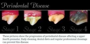4 Stages of Periodontal Disease